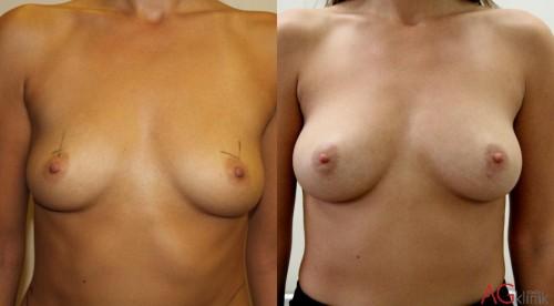 Powiększanie piersi tłuszczem