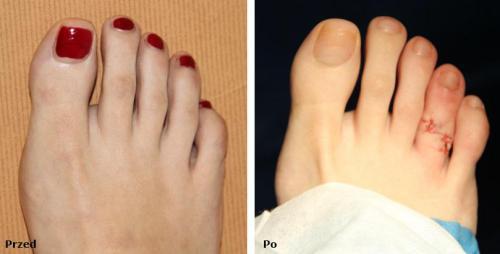 Skrócenie palca stopy